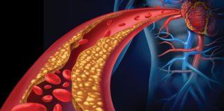 Soffri di ipertensione? cibi da assumere e da evitare
